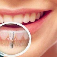 Имплантация зубов и возможные осложнения