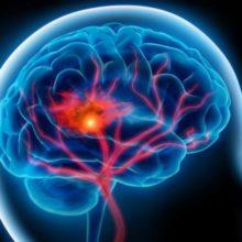 Виды неврологических заболеваний