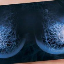 Важность маммологического обследования