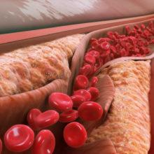 Причины возникновения атеросклероза и его симптомы