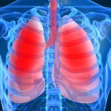 Пневмония. Что это такое