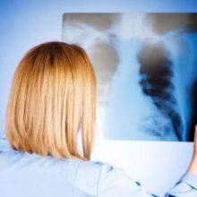 Как снизить риски легочных заболеваний