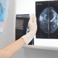 Маммография. Показания и противопоказания