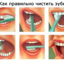 Правила и техника чистки зубов