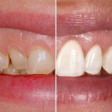Реставрация зубов винирами и люминирами