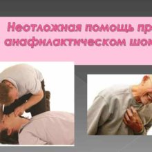 Помощь и лечение при анафилактическом шоке