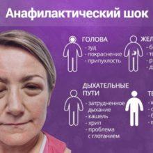Симптомы и причины анафилактического шока